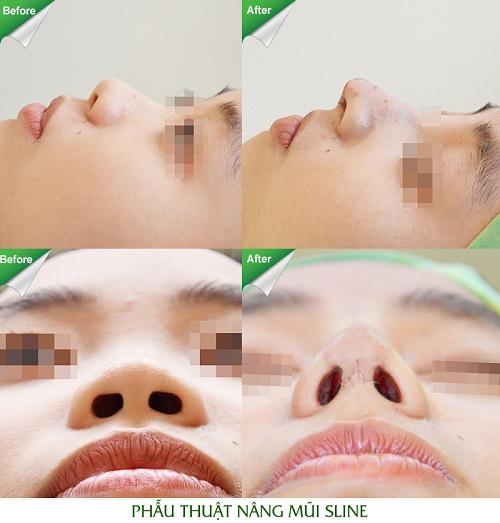 Tổng hợp hình ảnh thực hiện nâng mũi S line tại JW
