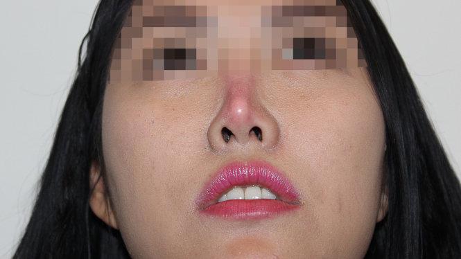 Sửa mũi sụn nhân tạo