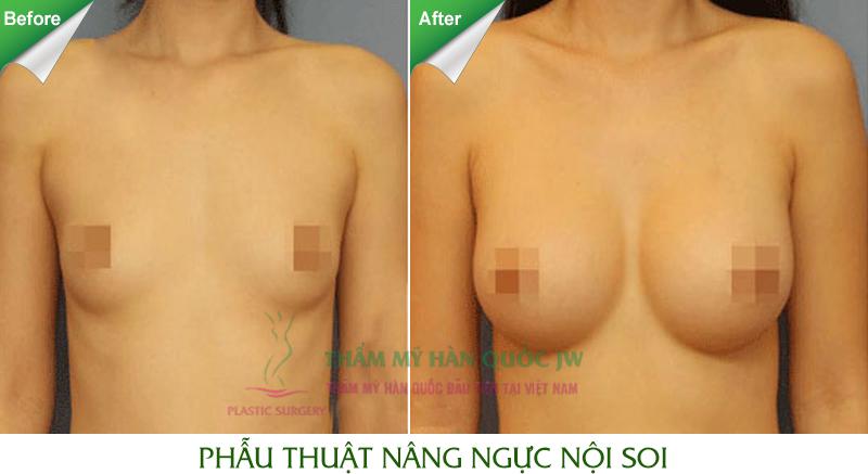 Thẩm mỹ nâng ngực ở Hà Nội