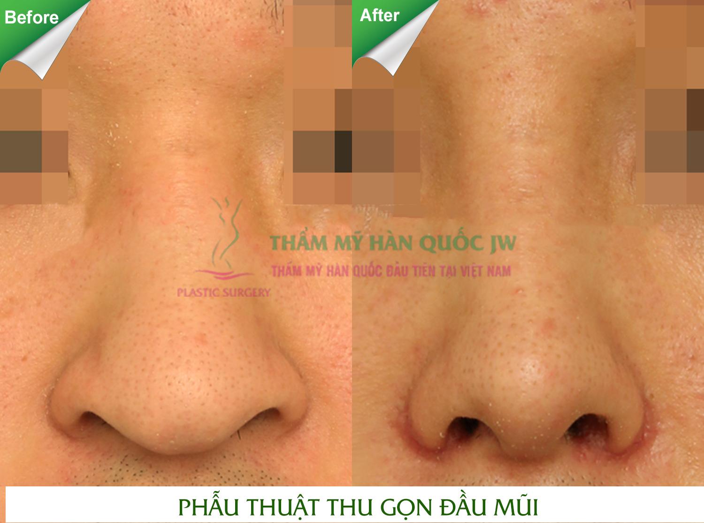 Thu nhỏ đầu mũi không phẫu thuật