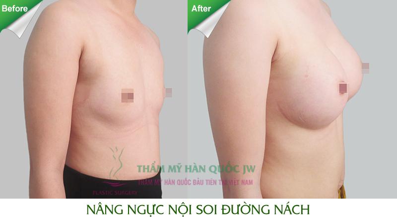 Nâng ngực hiệu quả và an toàn