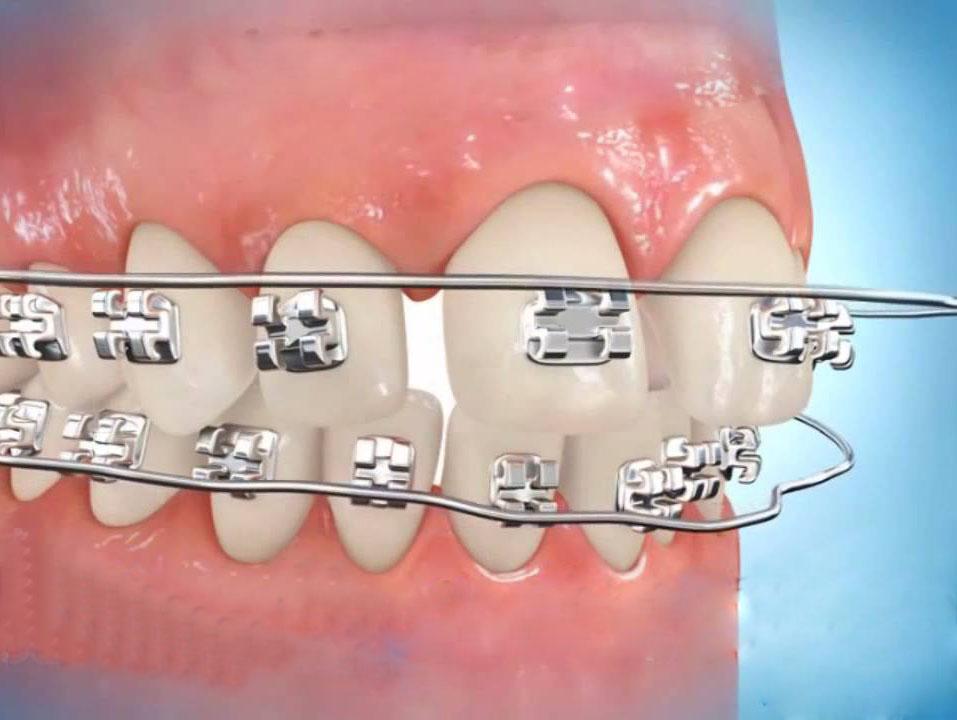 Niềng răng chữa hàm hô như thế nào?