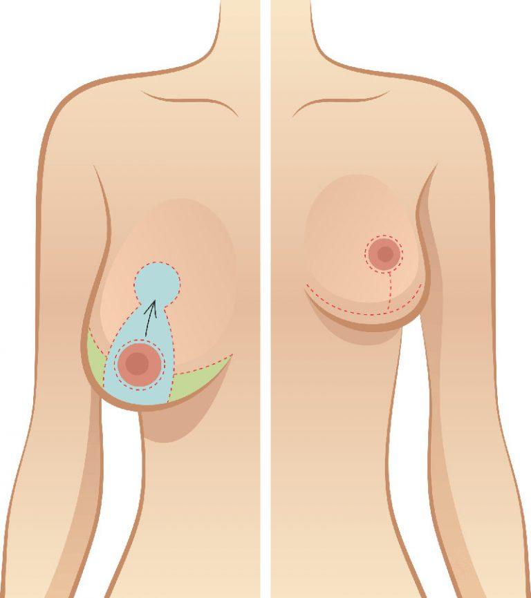 Nâng ngực chảy xệ sau sinh giá bao nhiêu?_2
