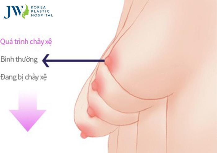 Nâng ngực chảy xệ tôn tạo vòng 1 căng tròn lý tưởng - Ảnh 2