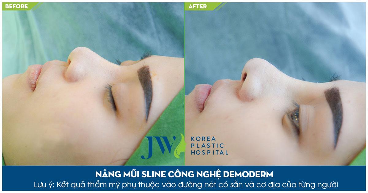 Nâng mũi S Line bằng Demoderm – Khắc phục hiệu quả mũi biến chứng - Ảnh 11