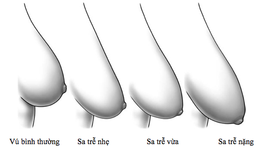 Phẫu thuật thẩm mỹ nâng ngực chảy xệ ở TPHCM