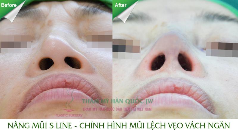 Sửa mũi có hại gì không