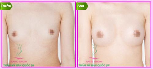 Thẩm mỹ viện nâng ngực bằng mỡ tự thân