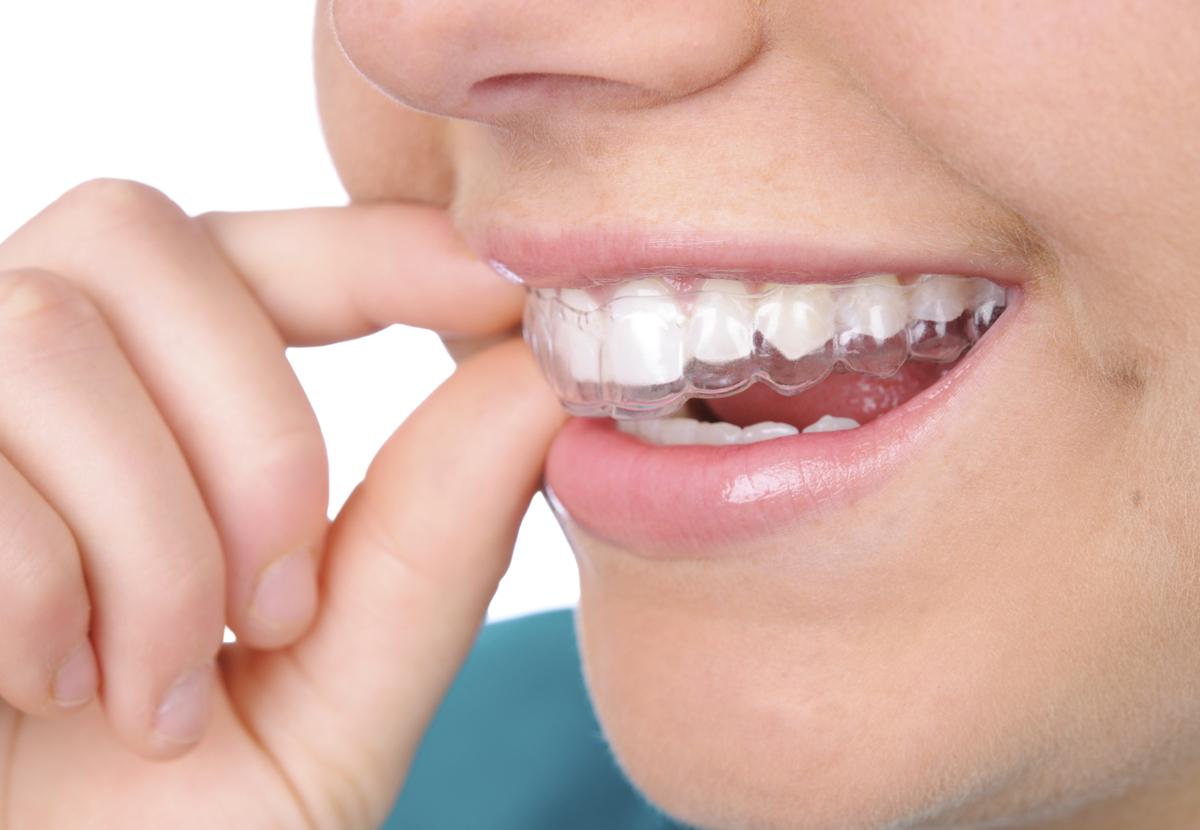 Chỉnh răng hô móm bằng cách nào