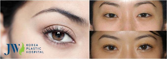 Bấm mí Doublelift - Tạo mắt 2 mí bền đẹp lâu dài - Ảnh 3
