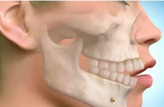 Phẫu thuật hô vẩu hàm