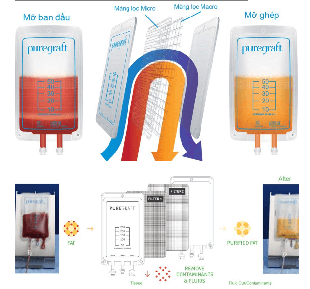 Quá trình chiết lọc mỡ bằng công nghệ Puregraft hiện đại.