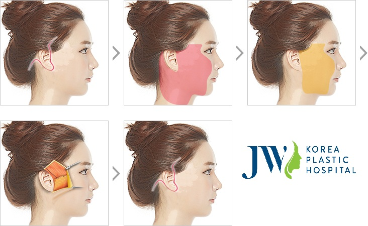 Căng da mặt SMAS - Duy trì sự trẻ trung tới 10 năm - Ảnh 5