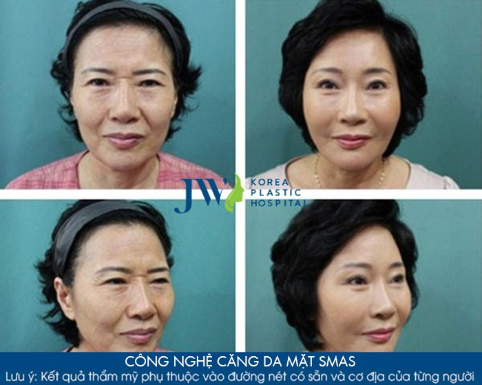 Căng da mặt SMAS - Duy trì sự trẻ trung tới 10 năm - Ảnh 7