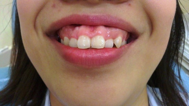 Phẫu thuật chữa cười hở lợi giá bao nhiêu tiền