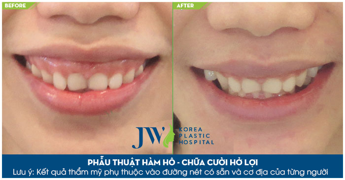 Kết hợp chữa trị hàm hô và hở lợi để khách hàng có được hàm răng đẹp, nụ cười xinh tại JW