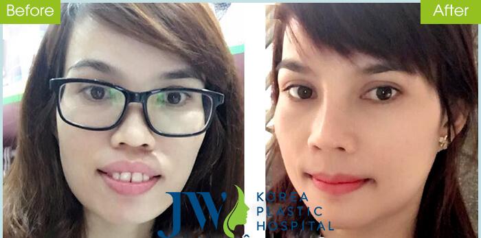 Trần Thị Như - người doanh nhân cải thiện gương mặt duyên dáng sau phẫu thuật hàm hô