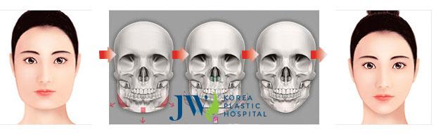 Gọt mặt trái xoan và 10 cách chăm sóc hậu phẫu_1