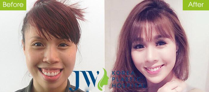 Lan Nhi đạt nhiều thành tựu trong sự nghiệp diễn viên múa sau khi phẫu thuật hàm hô tại Bệnh viện thẩm mỹ JW Hàn Quốc