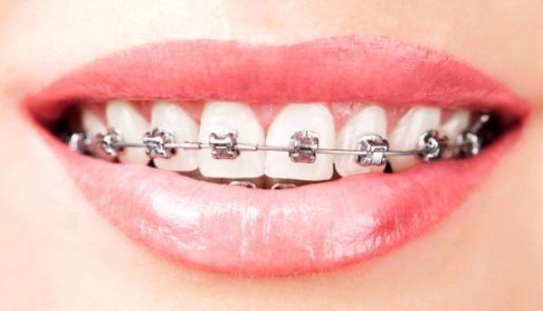Không phải lúc nào sử dụng niềng răng cũng mang lại kết quả như mong đợi
