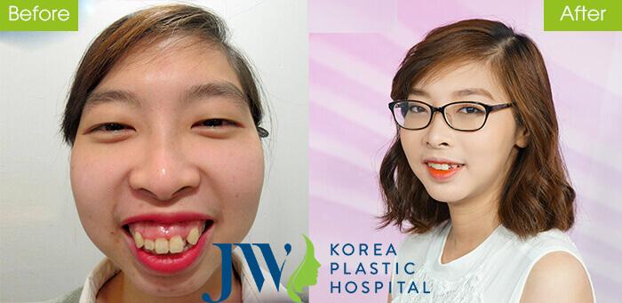 Diện mạo xinh đẹp của Mai Quỳnh Hoa sau phẫu thuật điều chỉnh hàm hô.