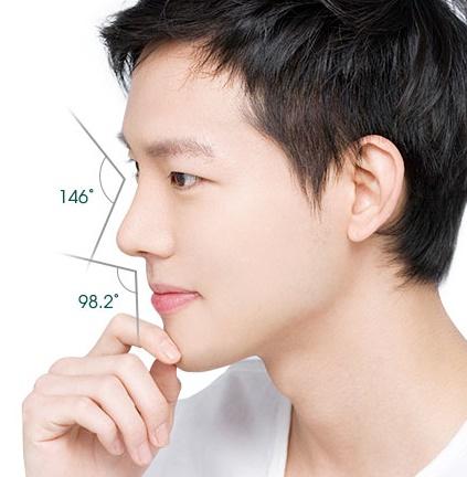 Phẫu thuật nâng mũi cho đàn ông