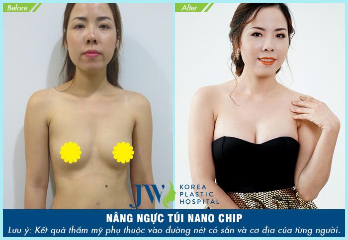 Phẫu thuật nâng ngực chảy xệ có đau không?_8