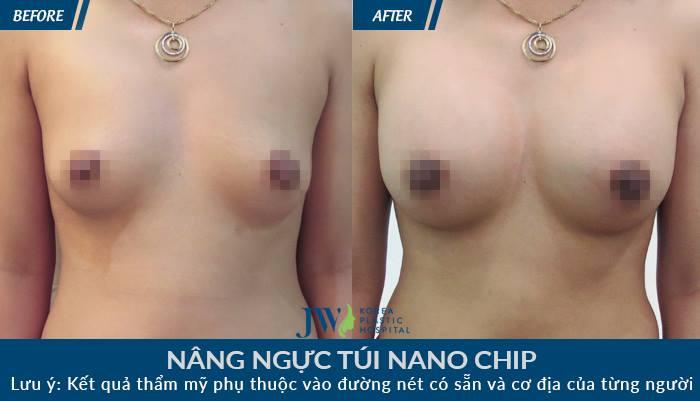 Hình ảnh khách hàng trước và sau khi thẩm mỹ vòng 1_9