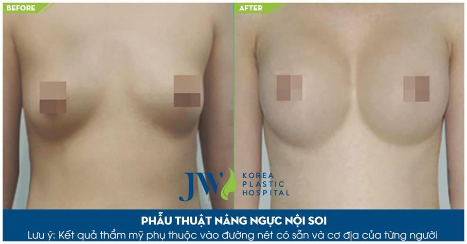 Hình ảnh khách hàng trước và sau khi thẩm mỹ vòng 1_13