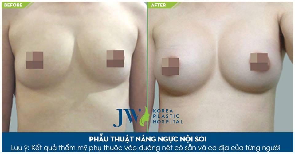Hình ảnh khách hàng trước và sau khi thẩm mỹ vòng 1_15
