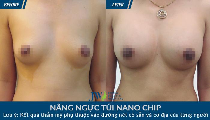 nang nguc tui nano chip