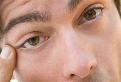 Chữa sụp mí mắt cho nam giới