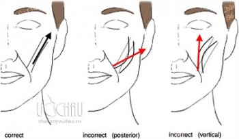 Căng da mặt smas trẻ hóa da mặt chảy xệ cho nam giới
