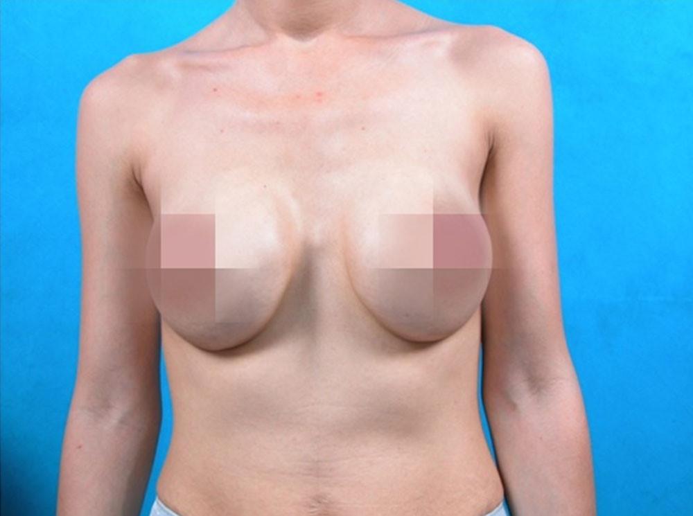 Làm thế nào để tránh co thắt bao xơ khi nâng ngực