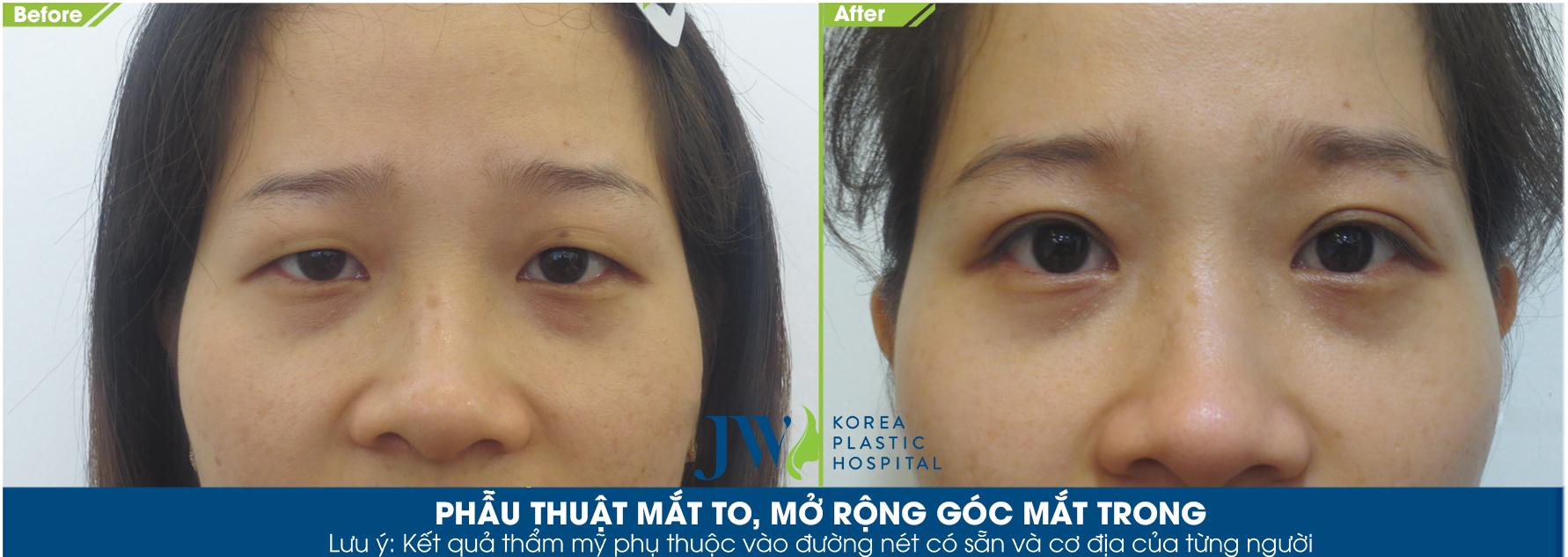 phẫu thuật mắt to, mở rộng góc mắt trong