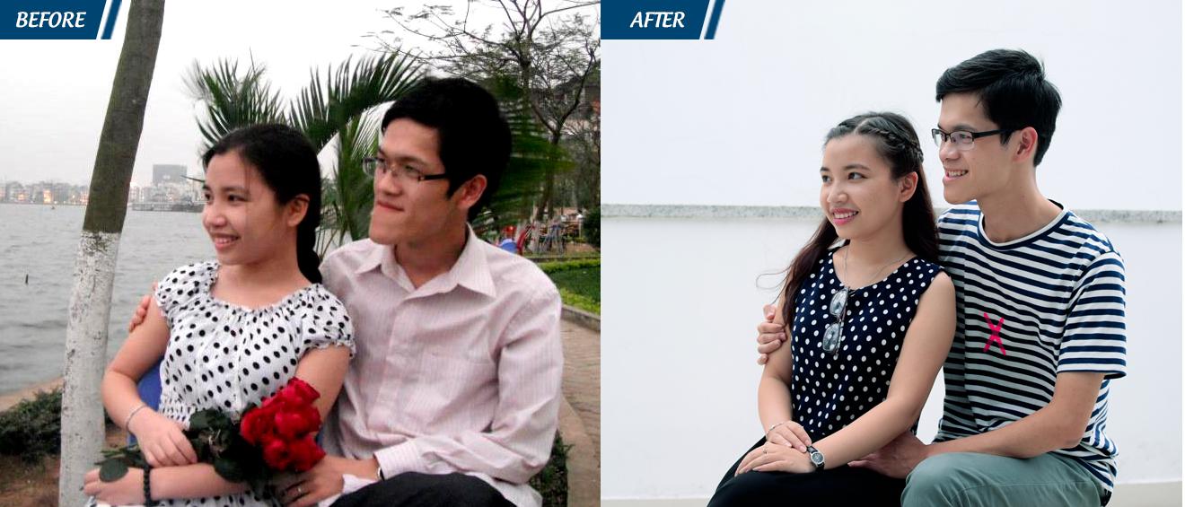 Sự khác biệt trước và sau khi phẫu thuật của chàng trai 14 năm bị móm nặng