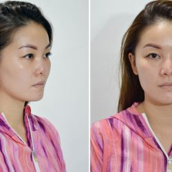 Bệnh nhân từ Singapore sang Việt Nam cầu cứu chiếc mũi hỏng nặng