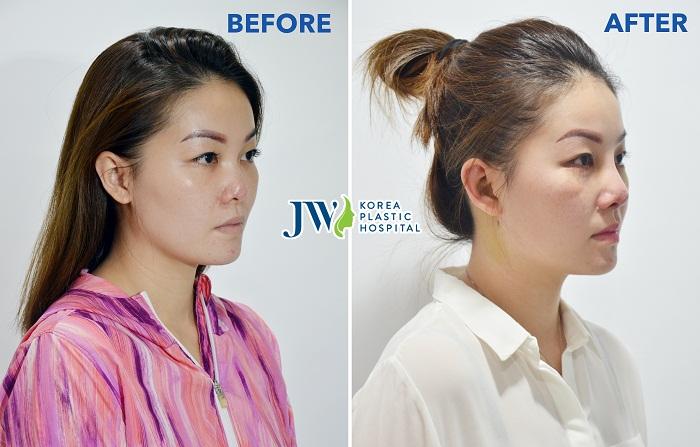 Ms Wong trước và sau