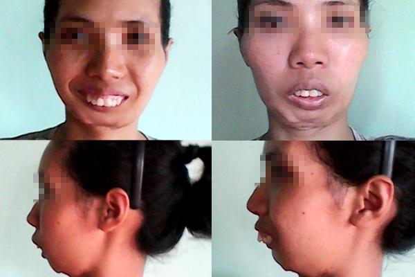 Phẫu thuật hàm miễn phí cho cô gái Ê đê