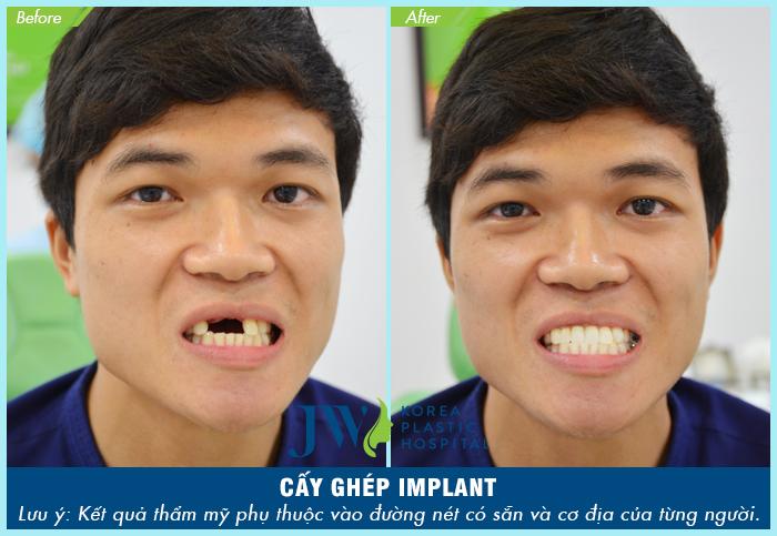 Vũ Minh (28 tuổi) Tự tin với nụ cười duyên dáng sau khi cấy implant hàm trên