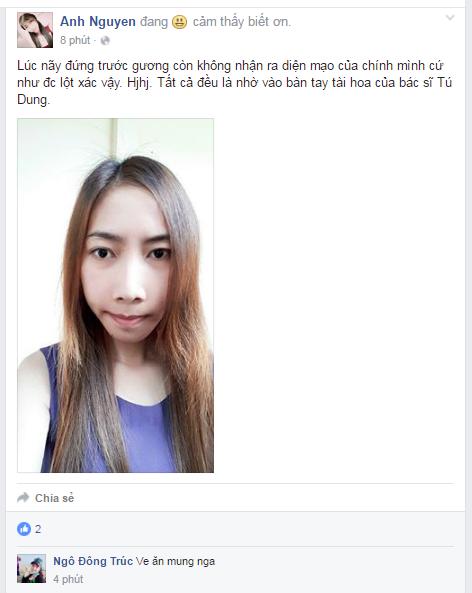 hong-anh-face