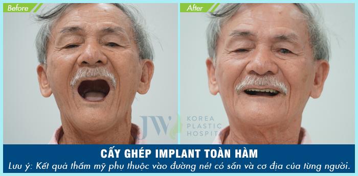 Chú Hồ Công Uẩn (68 tuổi) cải thiện ăn nhai nhờ cấy ghép implant