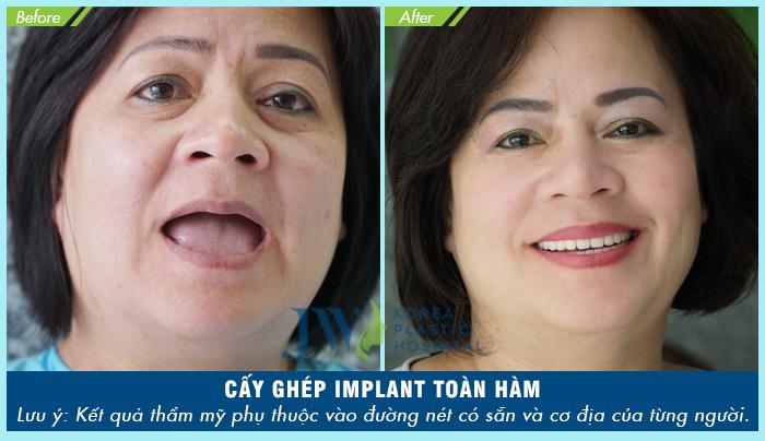 Cô Hồ Thị Phụng (52 tuổi) điều trị nha chu và cấy ghép implant toàn hàm