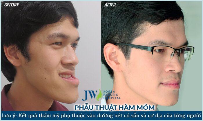 điều trị hàm hô móm không cần niềng răng - hình 2