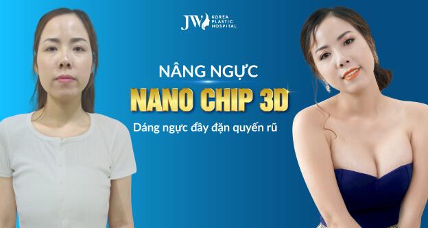 nâng ngực nano chip 3d
