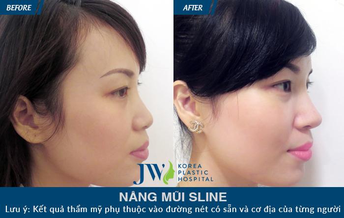Trường hợp mũi ngắn, sóng mũi nâng hỏng bị bóng đỏ và không tự nhiên khiến gương mặt đơ. Sau khi khắc phục bằng nâng mũi S line, gương mặt hài hòa, cân đối hơn, chiếc mũi cao thon đáng mơ ước