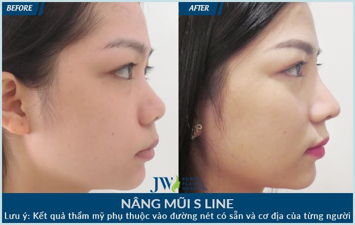 Chườm đá sau khi nâng mũi cấu trúc trong những ngày đầu tiên giúp mũi tránh khỏi tình trạng thâm và sưng.