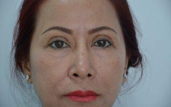 Chấm dứt hơn 20 năm sống chung với mắt phẫu thuật hỏng