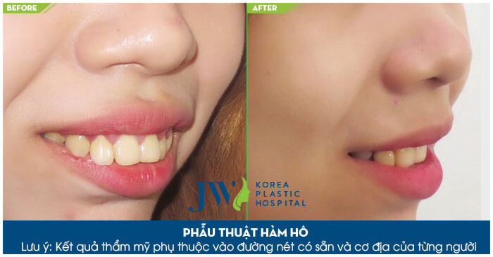 Phẫu thuật hô hàm dưới và hô hàm trên
