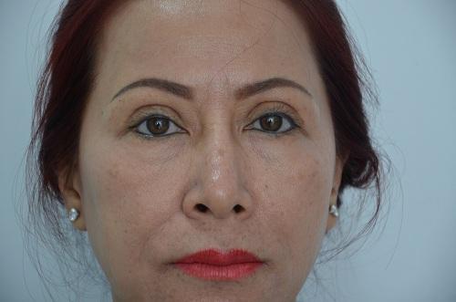 Làm sao để tránh những biến chứng khi cắt mí mắt